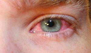 neumonía,conjuntivitis,