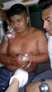 Uno de los heridos en el atentado ocurrido este miércoles en San José de Bocay