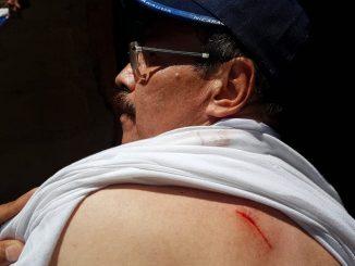 Herido en Somoto