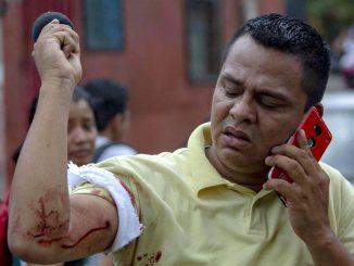 Periodista Wiston Potosme muestra la herida de bala que recibió durante una cobertura en Managua.
