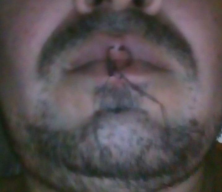 Preso político de Nicaragua con la boca cosida. FOTO: Cortesía.
