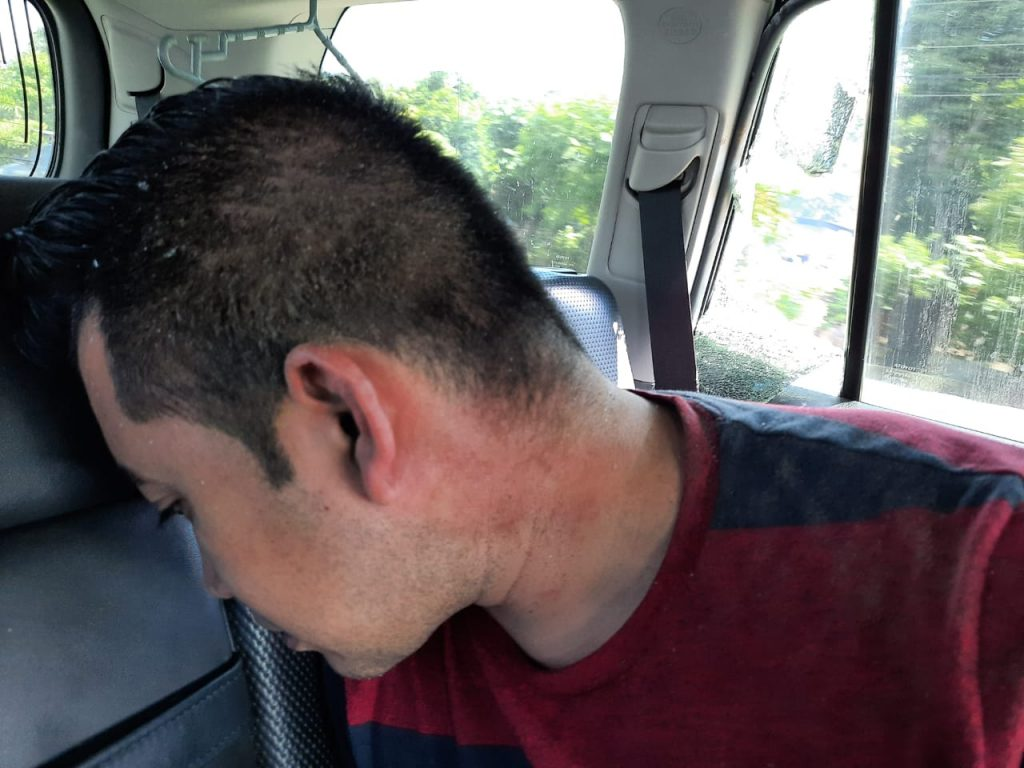 Josué Garay recibe pedrada
